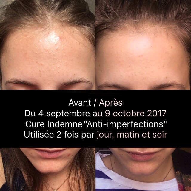 Résultat de la cure Indemne anti-imperfections durant 1 mois